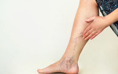 Causes and Prevention of Varicose and Spider Veins